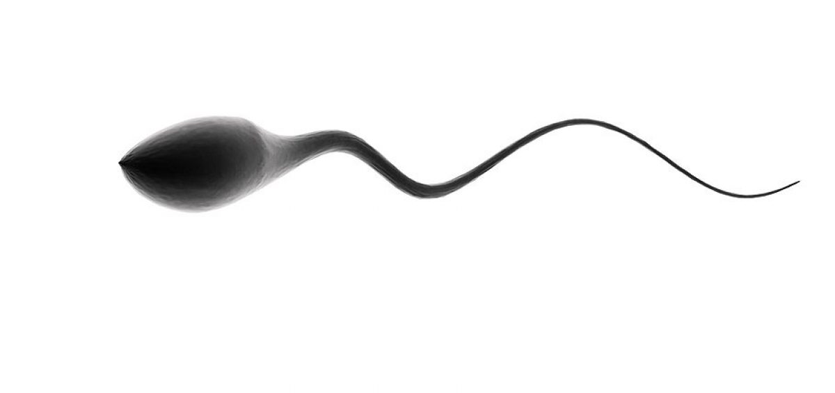 Drawbacks of using a sperm donor are not